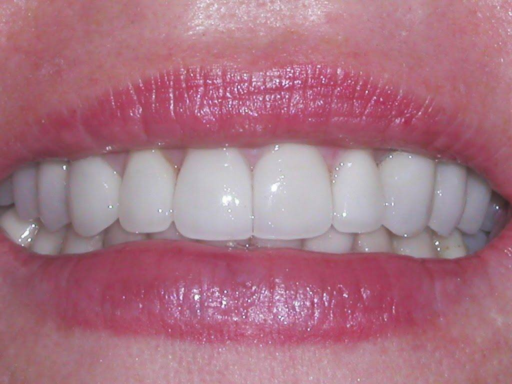 Before-2B-26-2BAfter-2B022-1024x768 Why You Should Change Your Mercury Fillings to Biocompatible Resin?