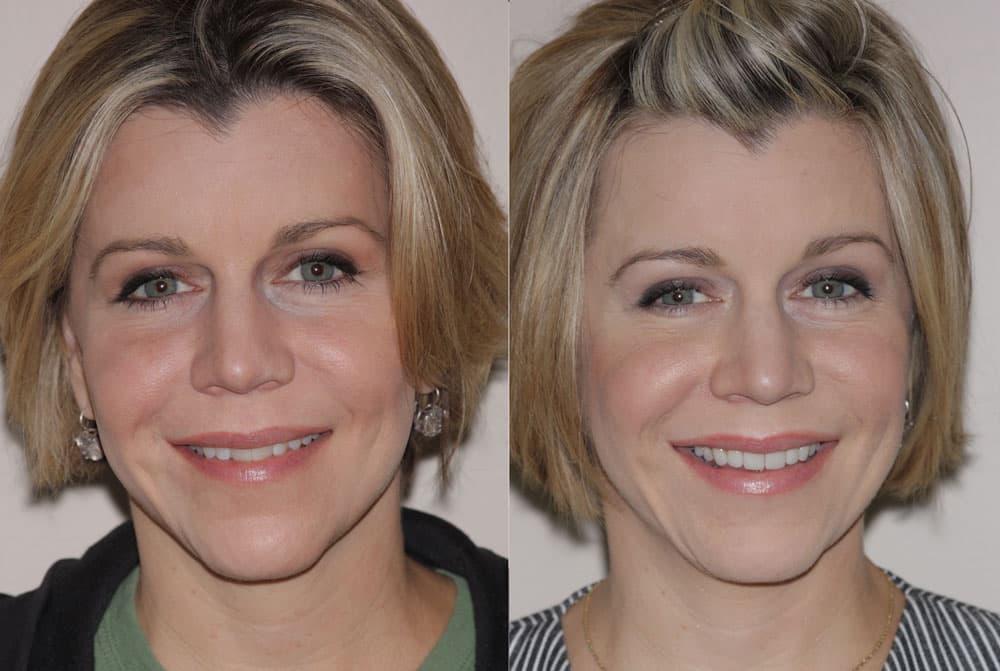 Crooked teeth corrected with porcelain veneers