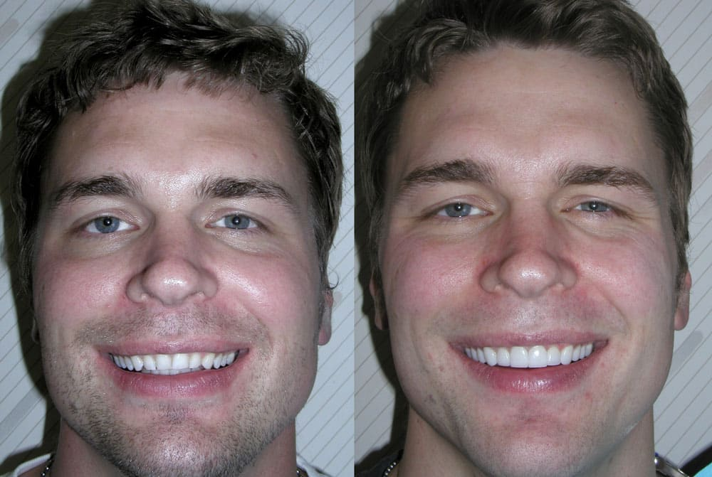 Classic veneers wanting a more masculine smile