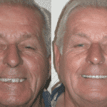 Dentures-replaced-with-Dental-Implants-150x150 Smile Gallery
