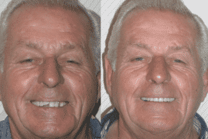 Dentures-replaced-with-Dental-Implants-300x201 Blog