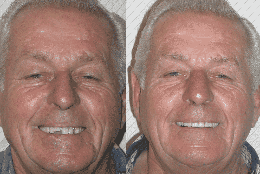 Dentures replaced with Dental Implants