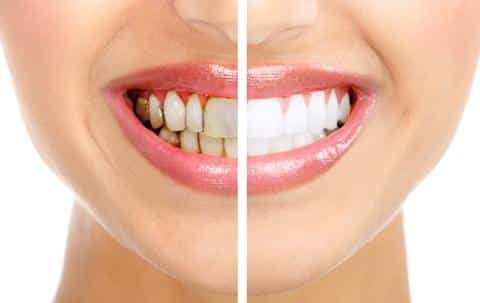 Teeth-Whitening How to Maintain Results after Teeth Whitening