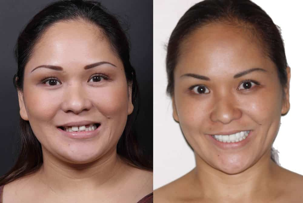Ten porcelain veneers and gum lift to give patient a feminine smile