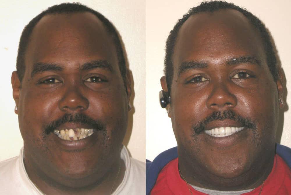 before-after-09-1 Understand Teeth, Their Conditions and Treatment- 04 - What's involved with Getting a Dental Implant