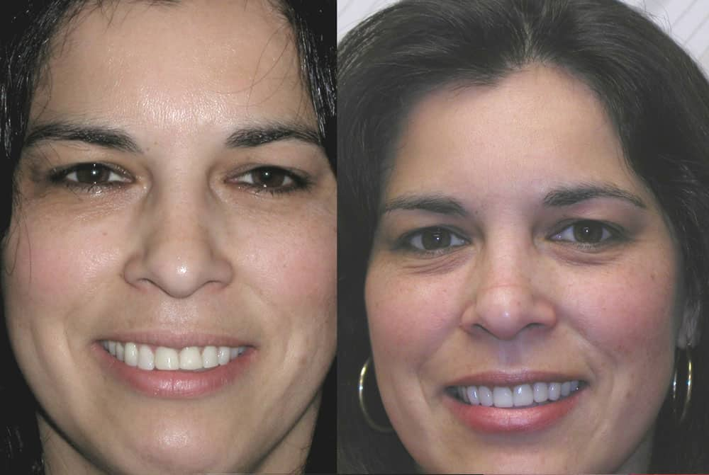 Cosmetic Correction Using Veneers