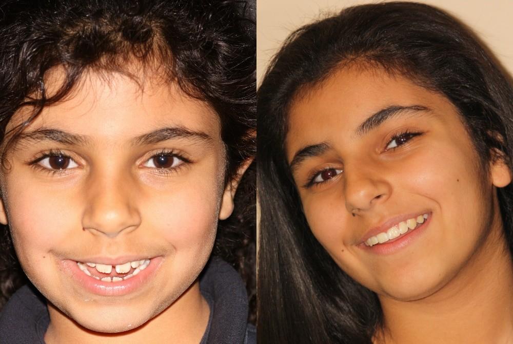 braces1 Braces for Children