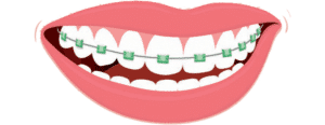 colormebraces-600x230-300x116 Dentists South Bay: Dentist Gardena, Hawthorne, Torrance, Carson, Redondo Beach