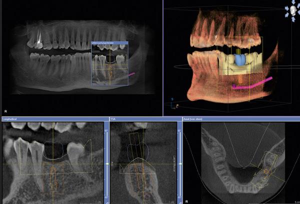 Sirona-2 3D CT Scan