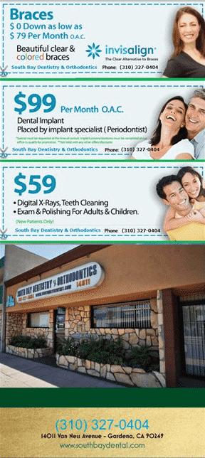 flyer-back-SB Summer Teeth Whitening Special at South Bay Dental & Orthodontics