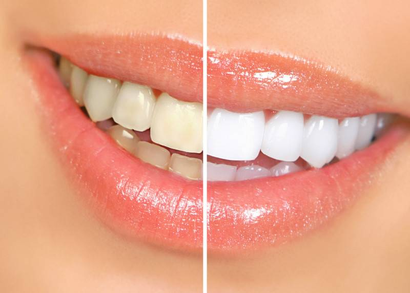 whitning Summer Teeth Whitening Special at South Bay Dental & Orthodontics