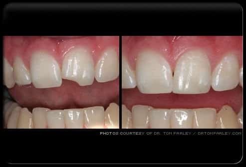 cosmetic_dentistry_bonded_chipped_tooth_s21 Understand Teeth, Their Conditions and Treatment - 14 - Is Bonding as Good as Veneers