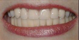 5f015e63-614f-4ac9-ae8e-ae3e81f570d7_lg11 Dental Implants