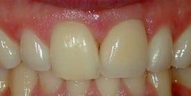 e1d1241e-f416-4331-82fc-ecc94c673214_lg11 Dental Implants