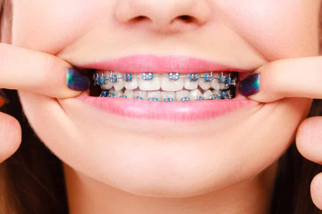 South Bay Dentistry Orthodontics Kids Braces
